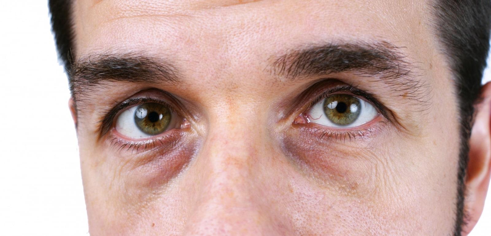 Göz Altı Torbaları