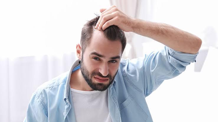 Saçı Seyrelen Erkek