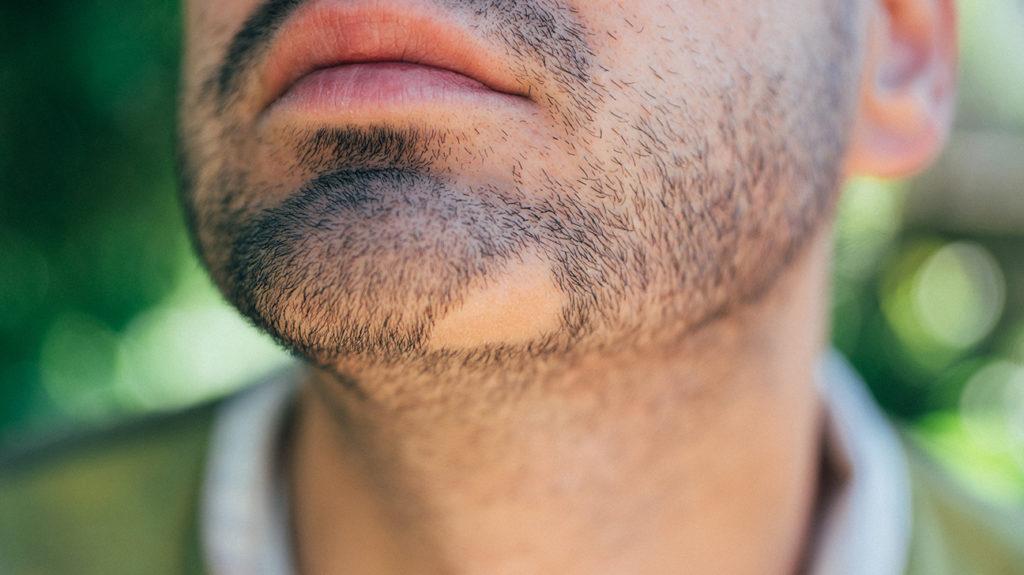 sakal problemleri